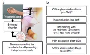Etude du contrôle de la douleur fantôme par une plasticité cérébrale sensorimotrice induite dans le cas d'une avulsion du plexus brachial ou amputation